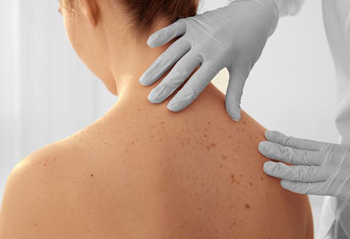 Medical Dermatology in New York, NY